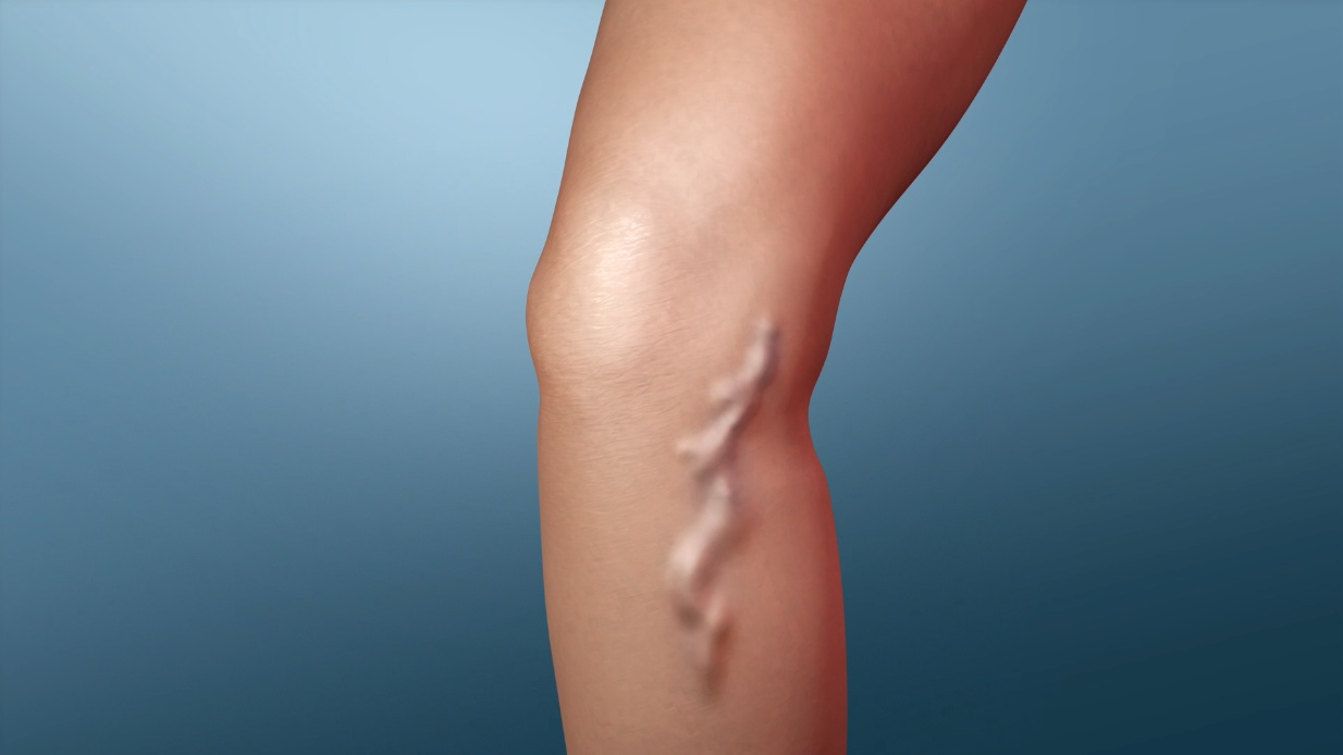 can varicose veins be removed