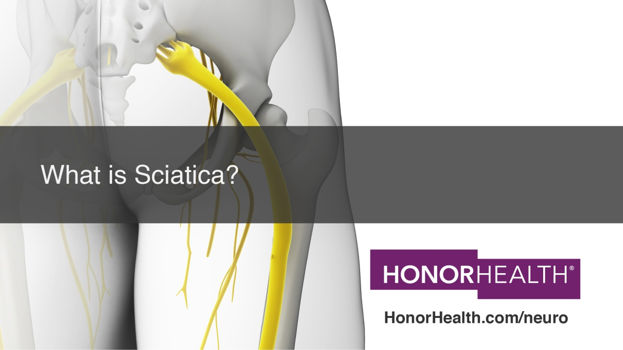 What Is Sciatica Honorhealth