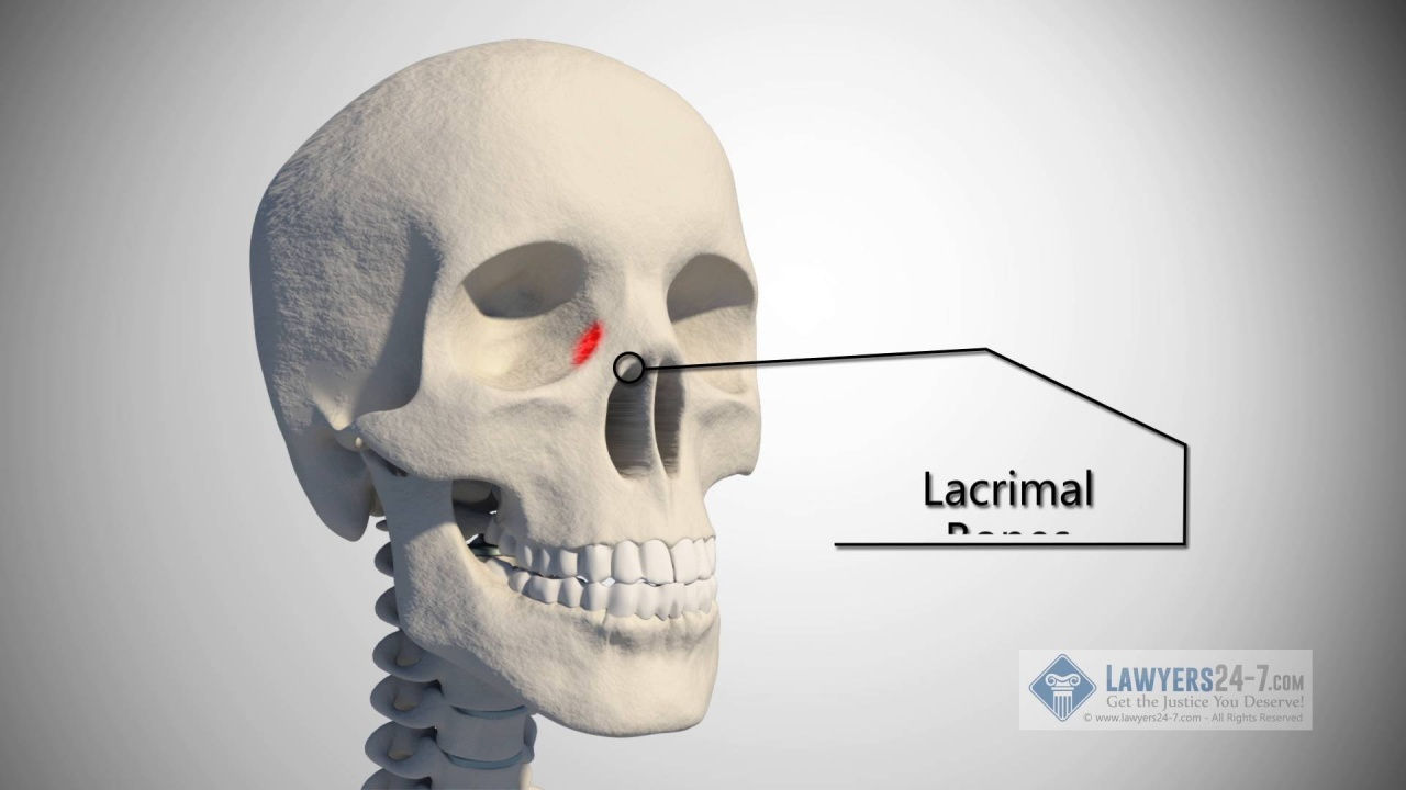 Injuries From an Accident: Brain Injury and Skull Injury | Lawyers24 ...