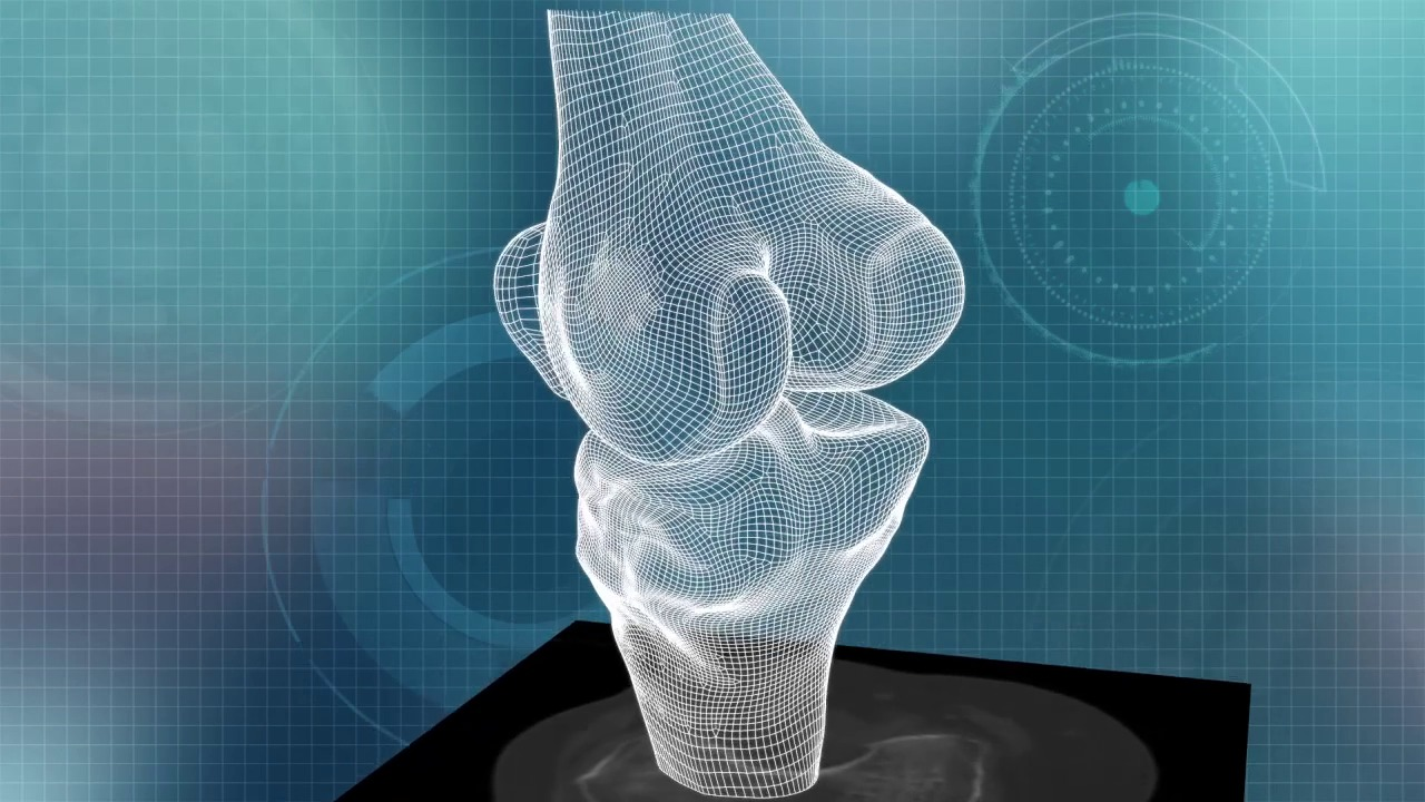 Lastest Technology In Knee Replacement Conformis