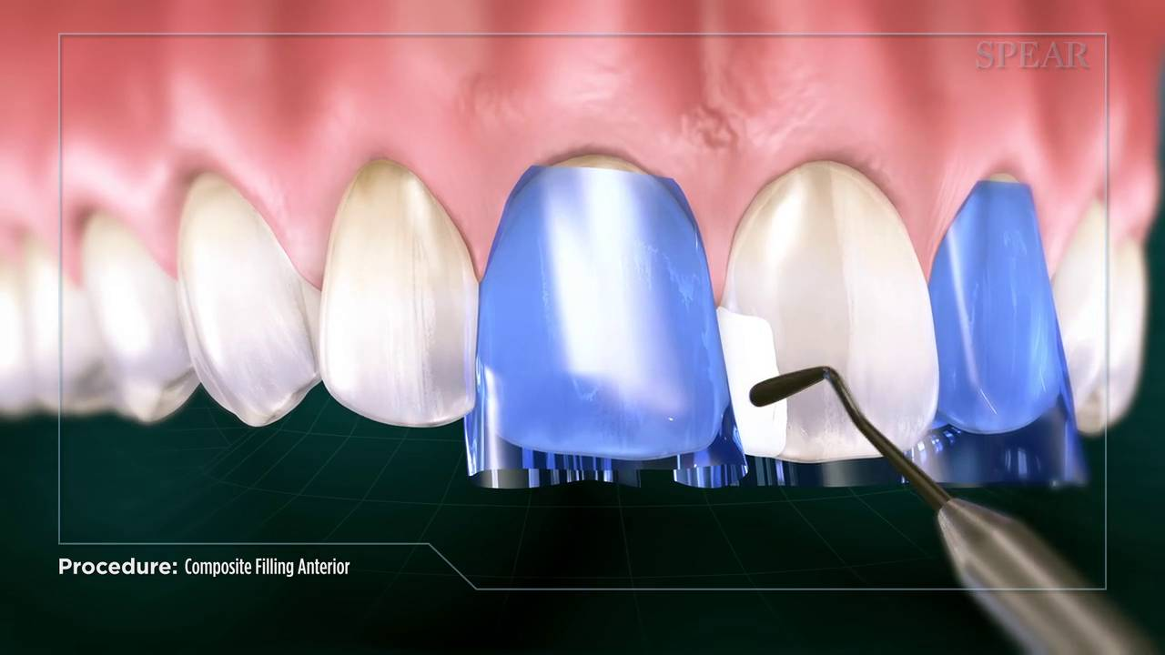 Tooth fillings liverpool swop amalgam with white fillings fix decay solutioingenieria Choice Image