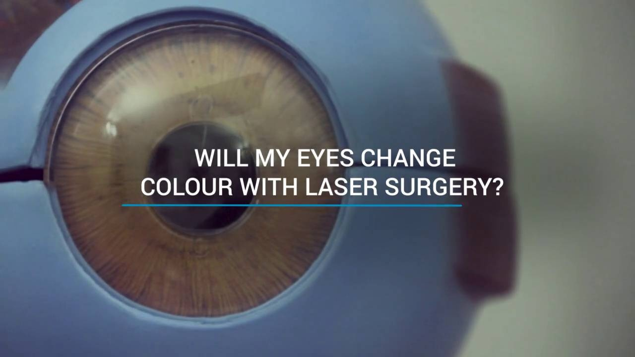 60bf7a01c84 Will my eyes change colour with laser surgery  - Focus Clinic London