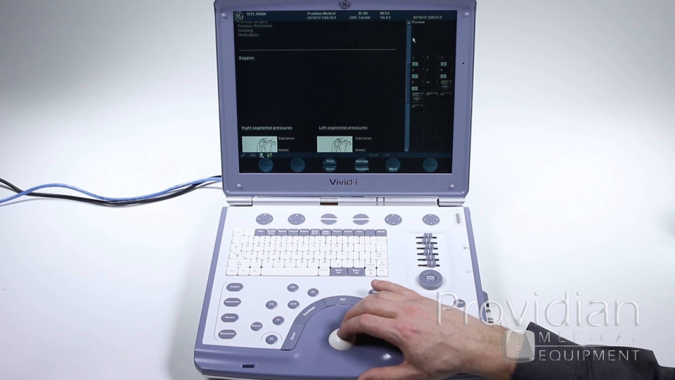 ge vivid i image review export and reports ultrasound training