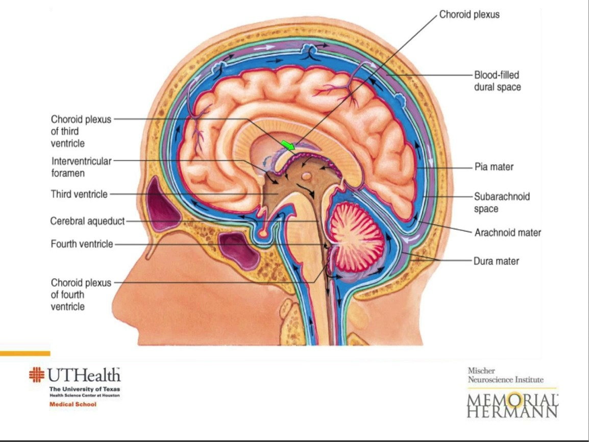 Normal Pressure Hydrocephalus - McGovern Medical School at UTHealth
