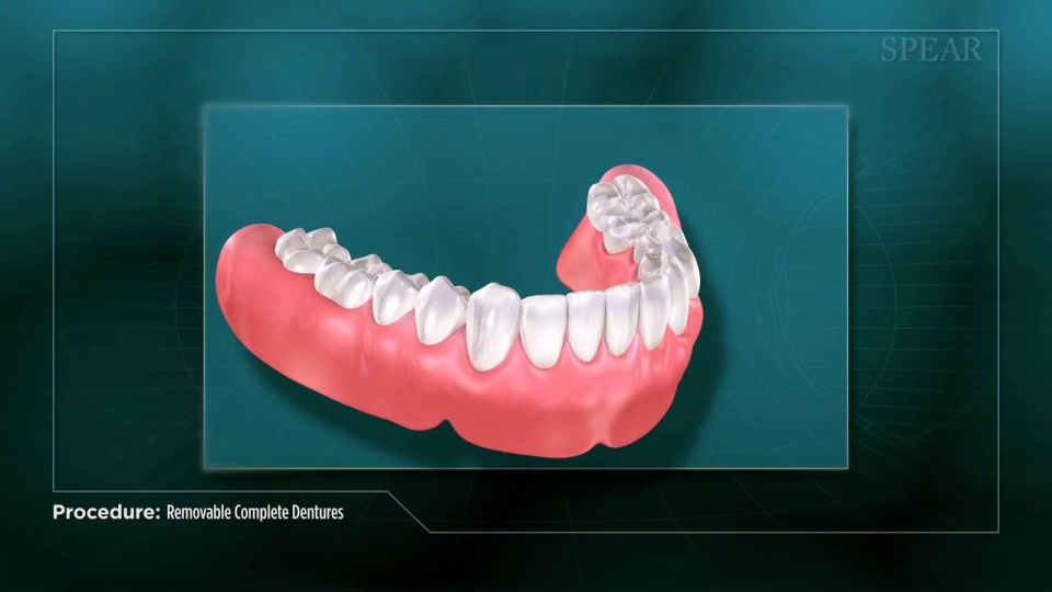 Partial And Full Dentures For Upper And Lower Teeth Strobel Dentistry