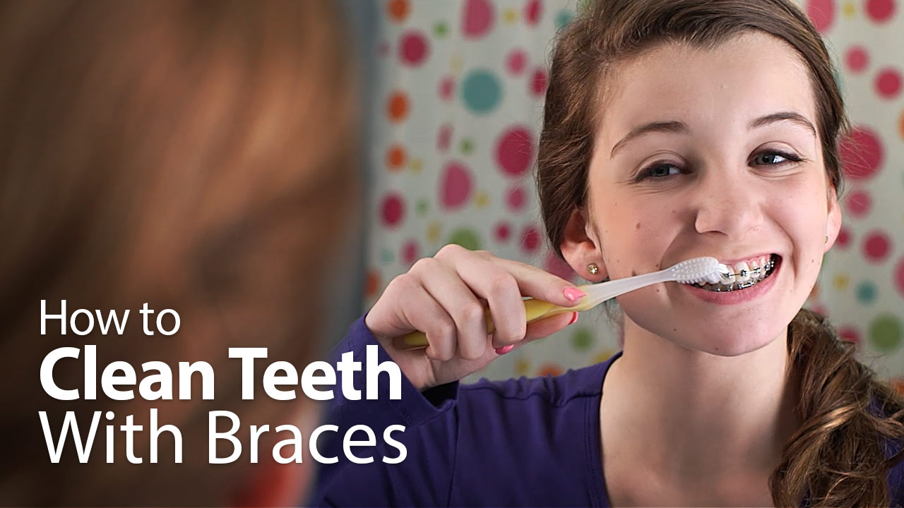 Congratulate, young teen girls with braces captions can