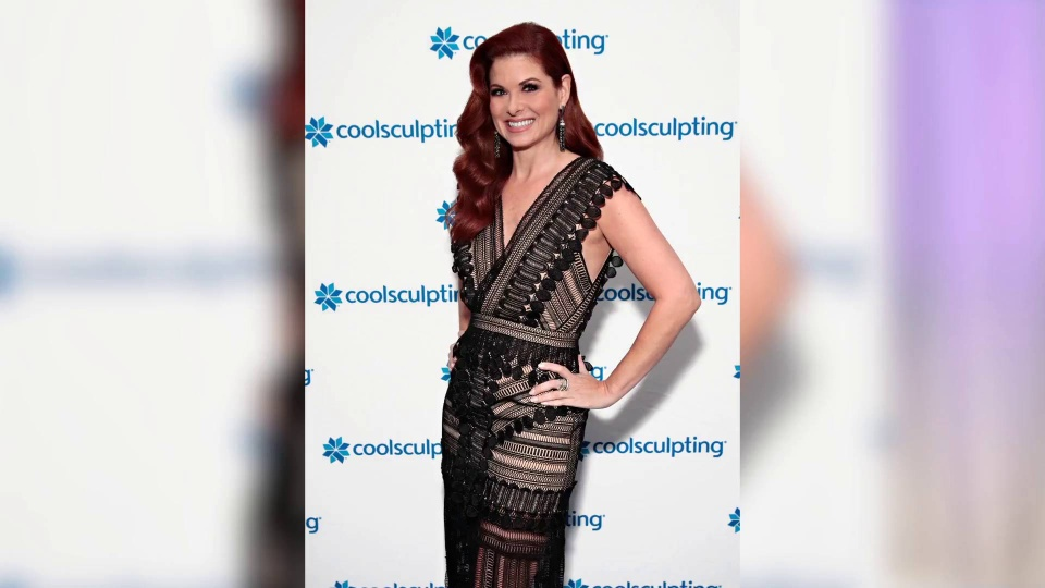 Wistia video thumbnail - Debra Messing Gushes About CoolSculpting At Break The Ice Event