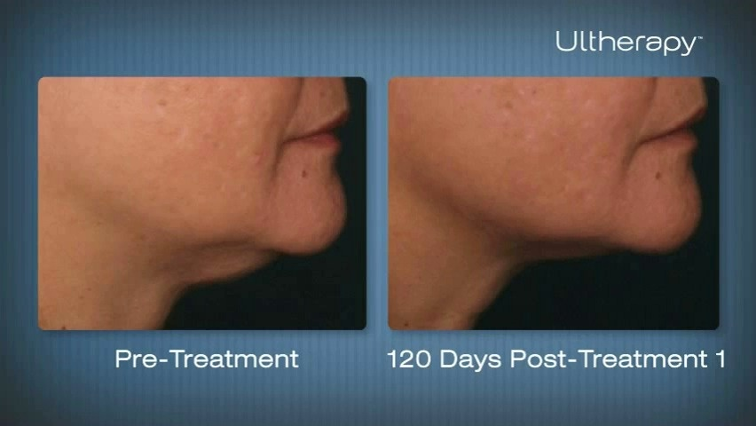 Ultherapy Non-Surgical Facelift Los Angeles, Beverly Hills CA