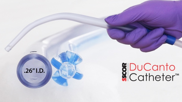 Wistia video thumbnail - SSCOR DuCanto Catheter Intro and Demonstration