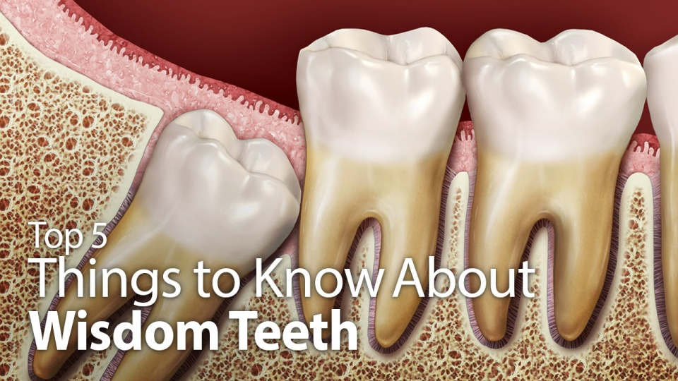 essay on wisdom teeth Wisdom teeth are the third and final set of molars that most people get in their late teens or early twenties sometimes these teeth can be a valuable asset to the mouth when healthy and properly.