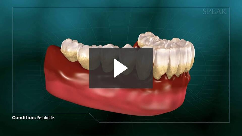 Periodontal Gum Surgery video