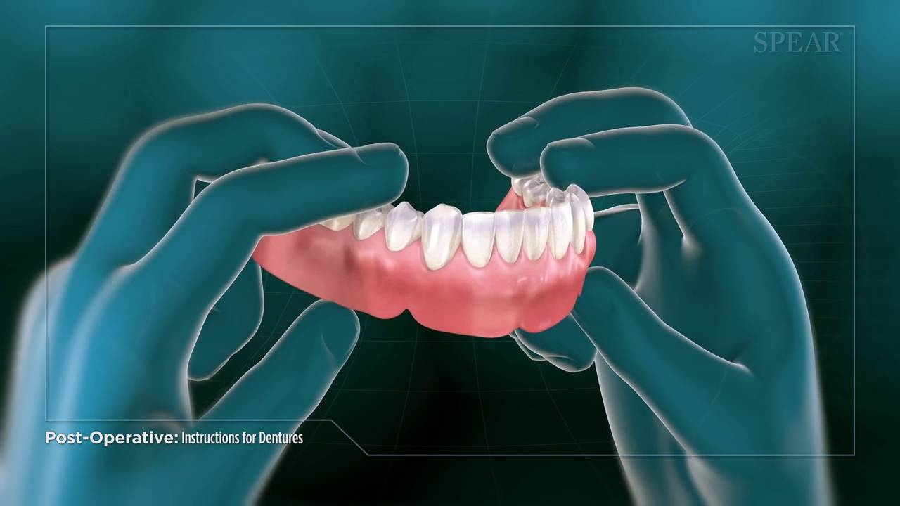 SP139 Post-Operative Instructions for Dentures