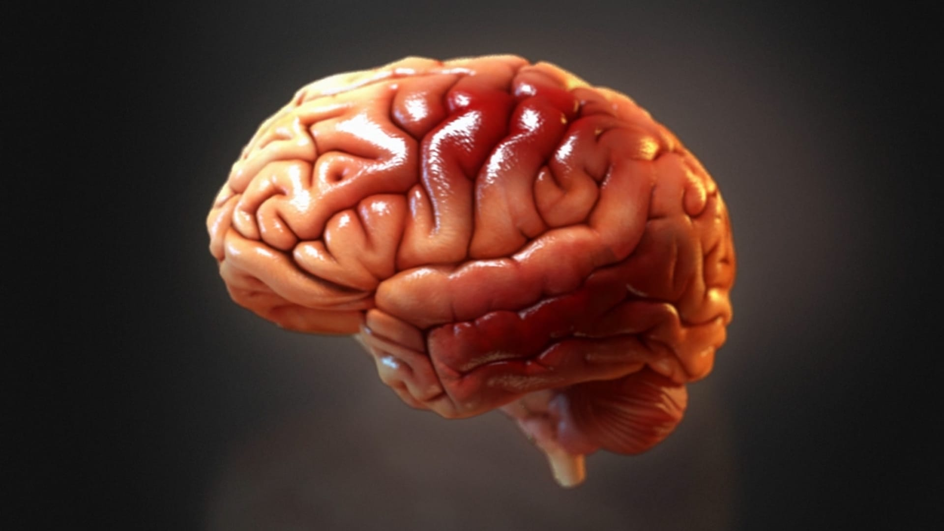 $29M Verdict 3D Mapping Neuropsychological Damage After Brain Injury ...