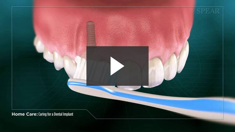 Video Resources Camenzuli Dental Excellence Dentist New