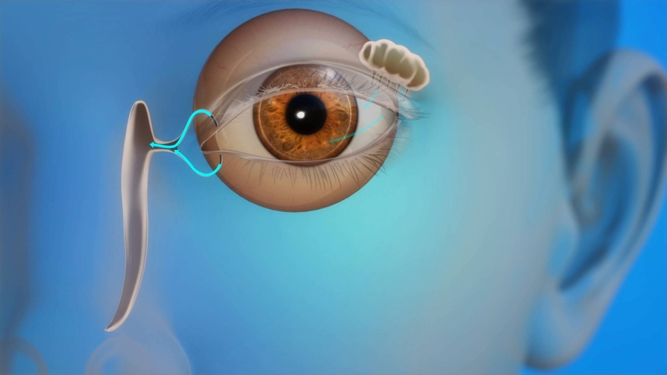 Dry Eyes Tallahassee | Allergies Florida | Excessive Tearing FL