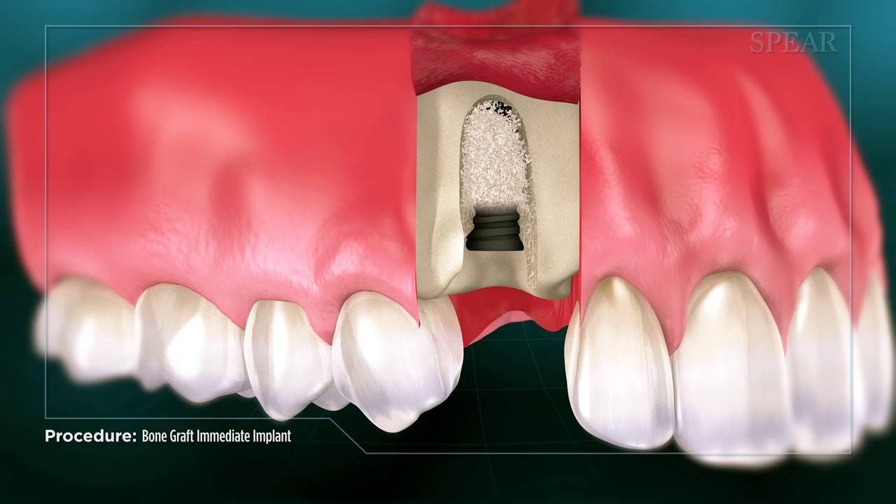 Bone Grafting is a surgical procedure used to help with bone and jaw issues Learn more in our Dental Information Center!