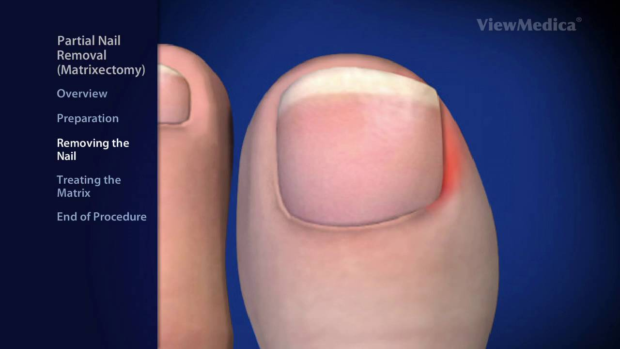 Partial Nail Removal | Matrixectomy |Phoenix Podiatrist