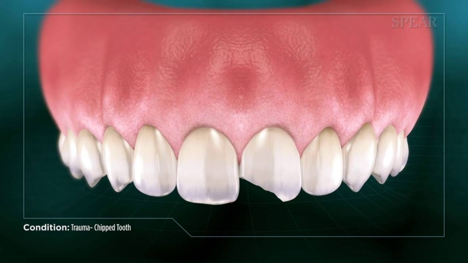 SP100 Trauma- Chipped Tooth