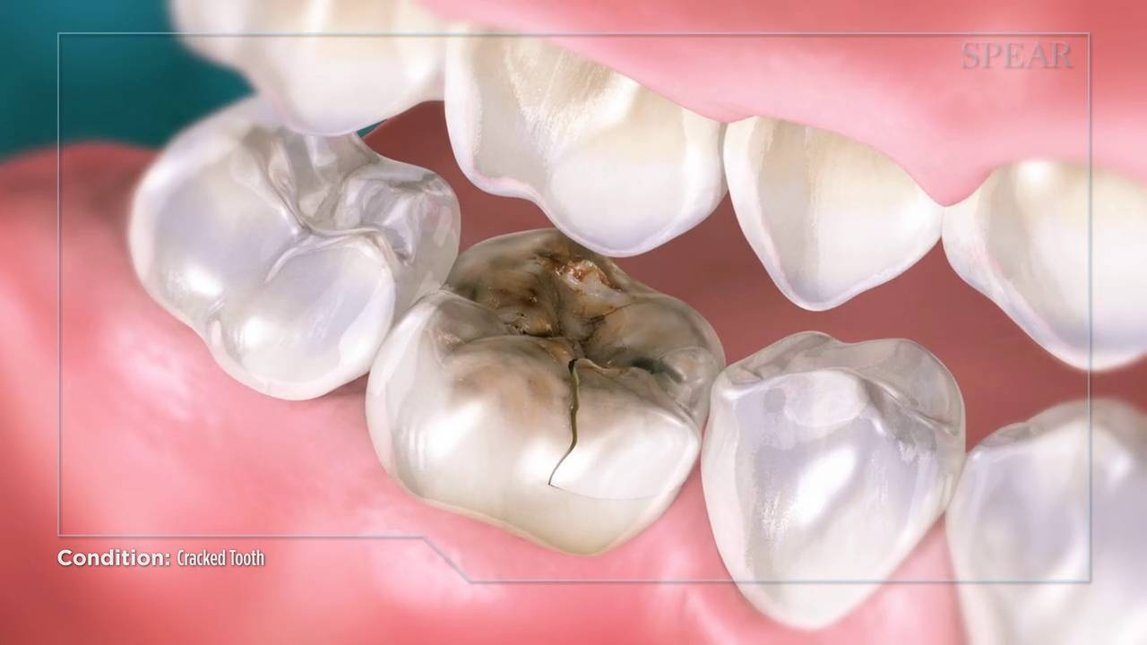 cracked tooth root canal infection