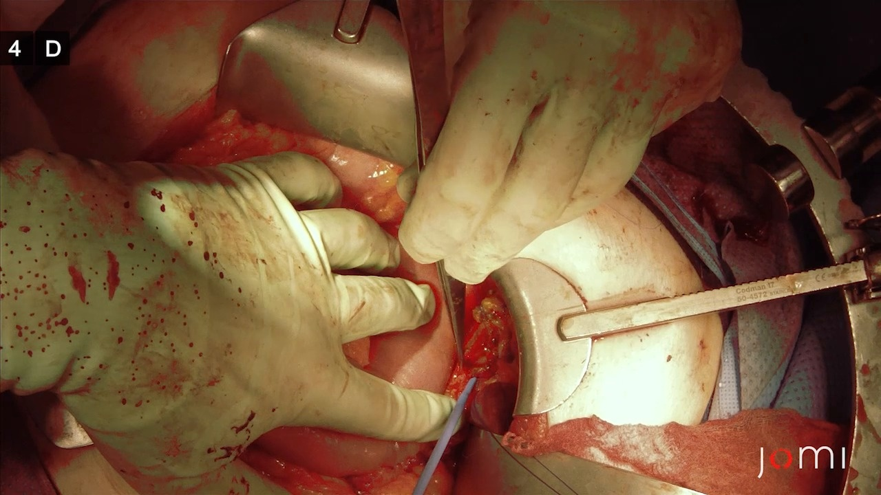 Whipple Procedure For Carcinoma Of The Pancreas Part 2