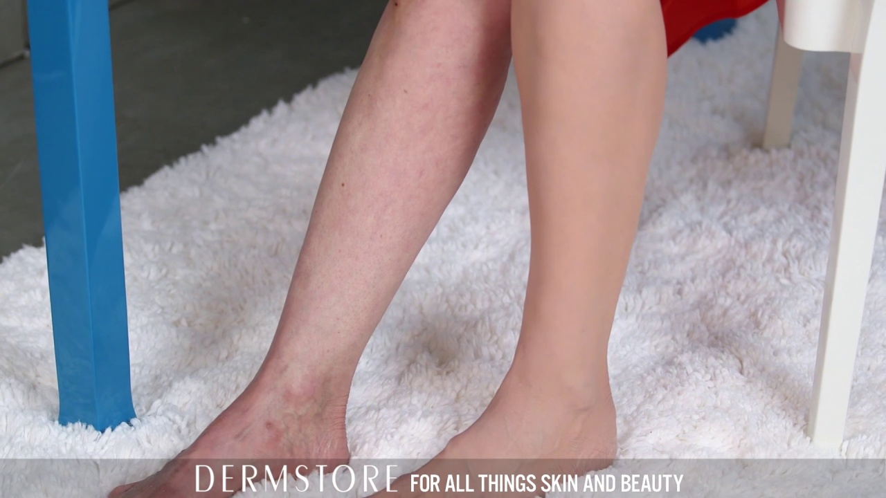 How to Cover Up Spider Veins